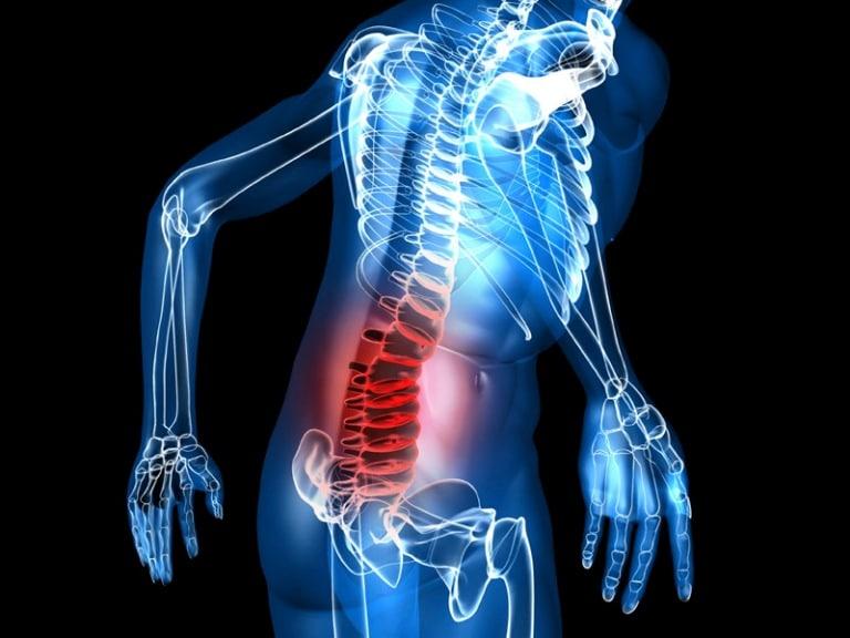 mal-di-schiena-lombare-acuto Mal di schiena lombare quali sono le cure