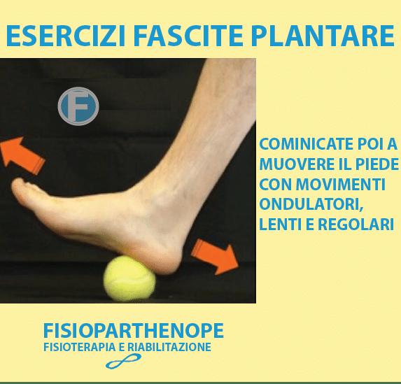 02-ESERCIZI-FASCITE-PLANTARE La Spina Calcaneare cure e rimedi