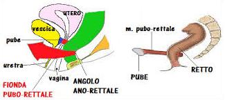 fionda-pubo-rettale Pavimento Pelvico cosa è e perché è così importante?