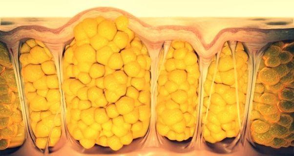 come-eliminare-cellulite Come curare la cellulite